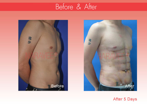 liposuction before and after picture
